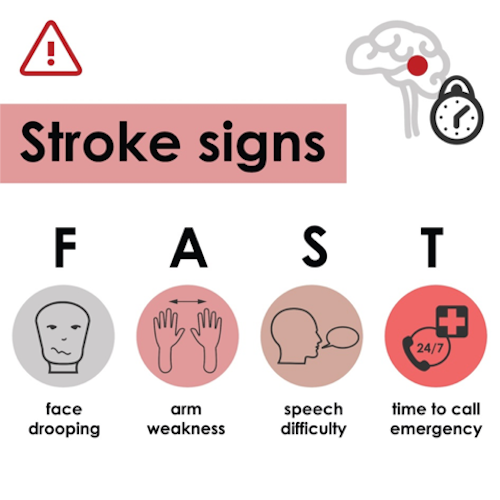 Signs of stroke training course